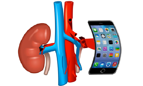 An iPhone Kidney